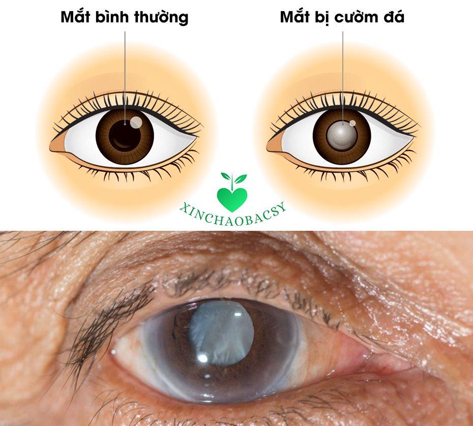 Mắt bị cườm đá là bệnh gì? Cách nhận biết và chữa trị hiệu quả